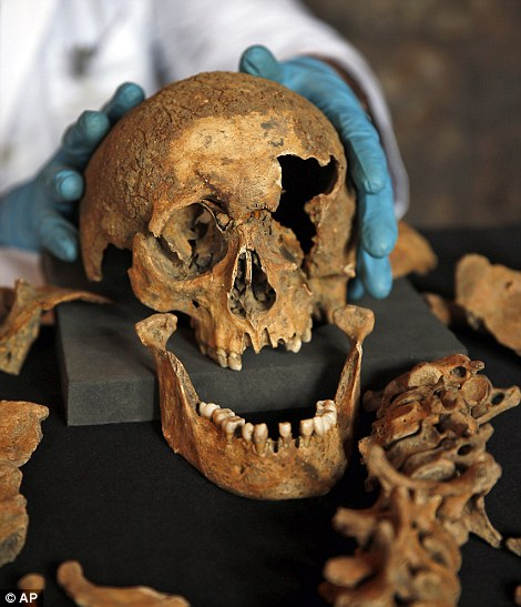 DNA of plague bacteria taken from the 25 skeletons discovered in Clerkenwell was compared to samples from a recent outbreak in Madagascar which killed 60 people Read more: http://www.dailymail.co.uk/news/article-2592566/How-Black-Death-Londoners-just-cosmopolitan-Analysis-14th-century-remains-shows-four-10-victims-grew-elsewhere.html#ixzz2xSnem9u4  Follow us: @MailOnline on Twitter | DailyMail on Facebook